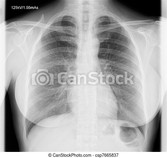 X-Ray Image Of Human Chest - csp7665837