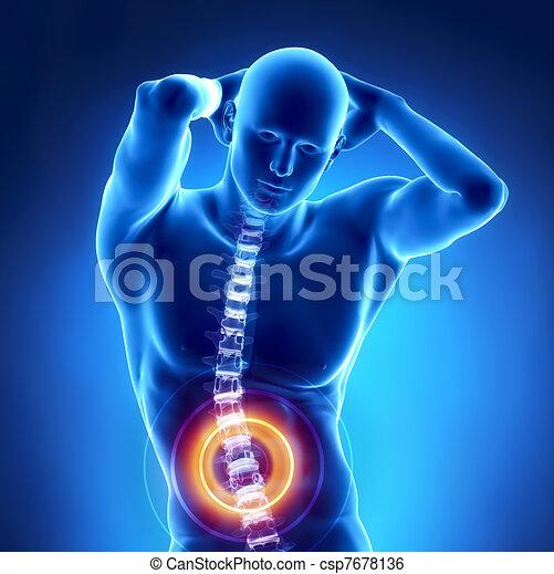 Human x-ray lumbar spine problem - csp7678136
