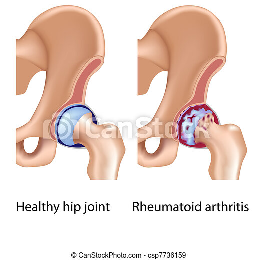 Rheumatoid arthritis of hip joint - csp7736159