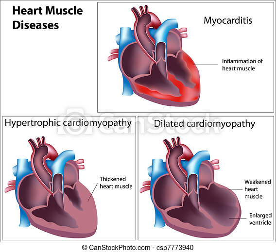Diseases of heart muscle, eps8 - csp7773940