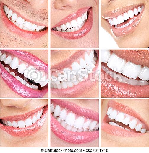 微笑, 牙齒 - csp7811918