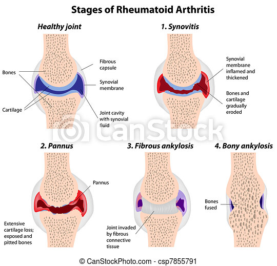 Stages of rheumatoid arthritis - csp7855791