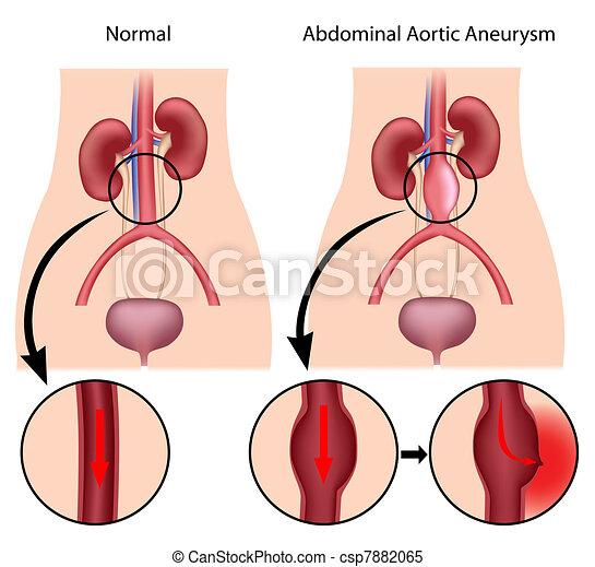Abdominal aortic aneurysm, eps8 - csp7882065