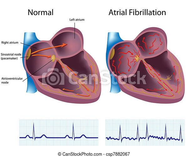 Atrial fibrillation, eps8 - csp7882067