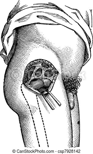 Hip joint opened by the outside, to show the neck of the femur, vintage engraving. - csp7928142