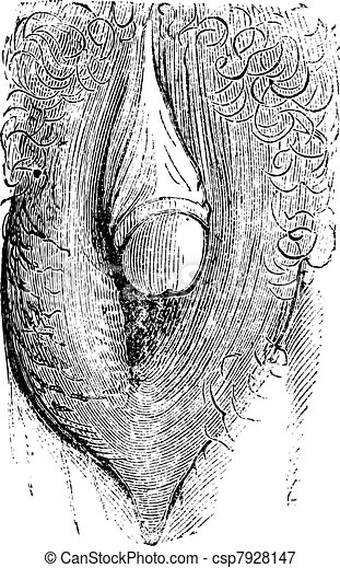 Hypertrophy of the clitoris simulating gland of man and can make people believe a hermaphroditism of the individual (strong), vintage engraving. - csp7928147