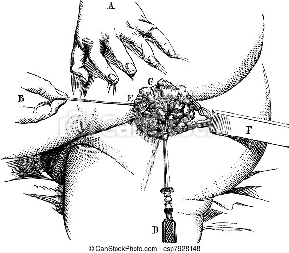 Removal of a hemorrhoidal pad with a linear crusher, vintage engraving. - csp7928148