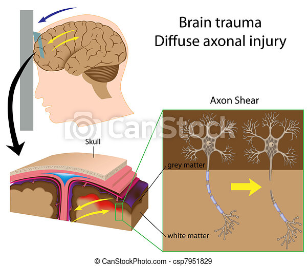 Brain trauma with axon shear, eps8 - csp7951829