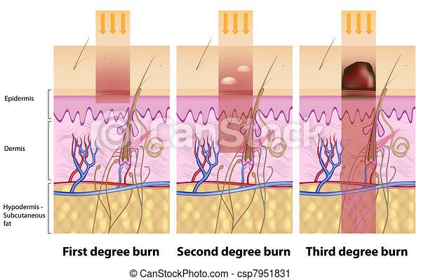 Skin burns, eps8 - csp7951831