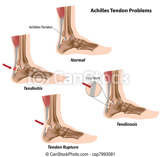 Achilles tendon problems - csp7993581