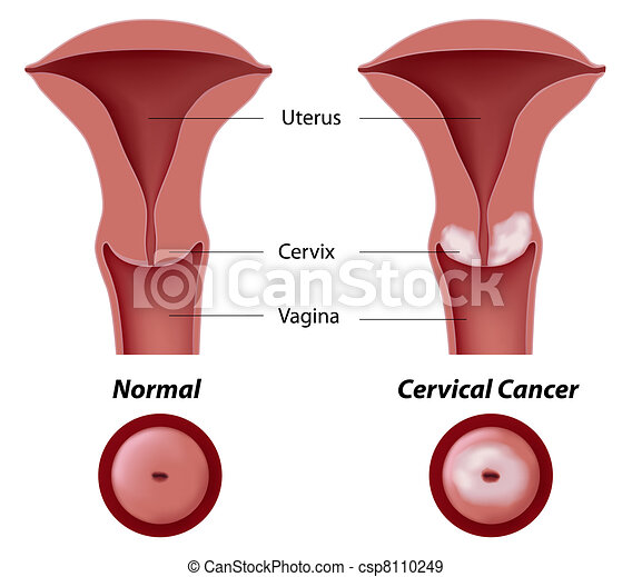 Cervical cancer, eps8 - csp8110249