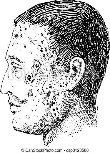 Human face infected with impetigo vintage engraving - csp8123588
