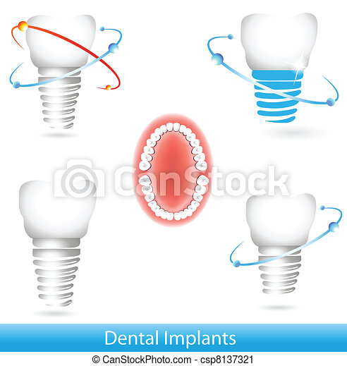 Dental implants - csp8137321