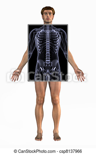Man with X-Ray - csp8137966