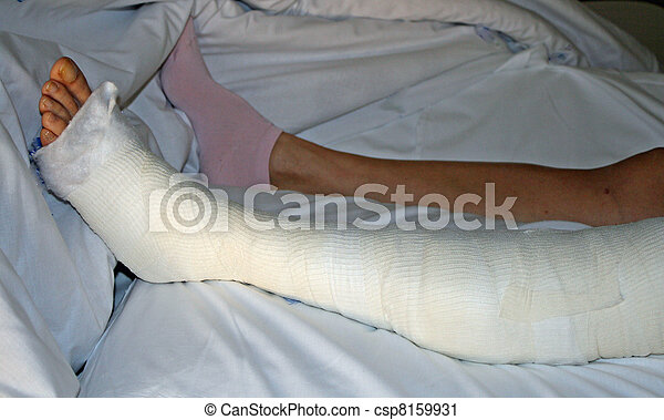 Stock Photography of foot and leg bandaged after surgery ...