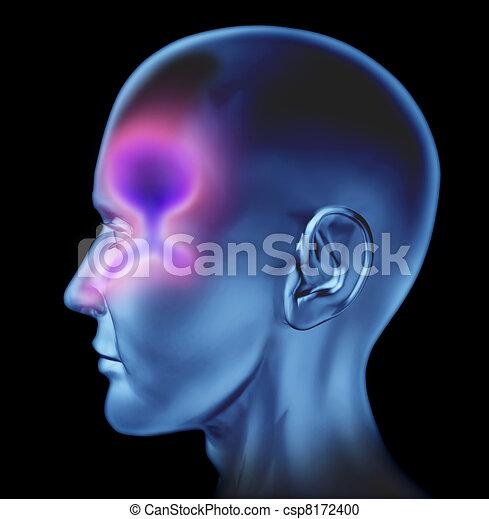 Human Nasal congestion - csp8172400
