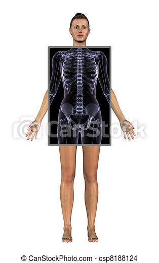 Woman with X-Ray - csp8188124