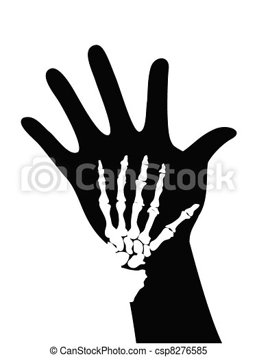 skeleton on hand - csp8276585