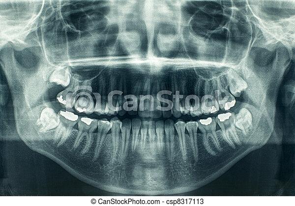 Dental xray - csp8317113