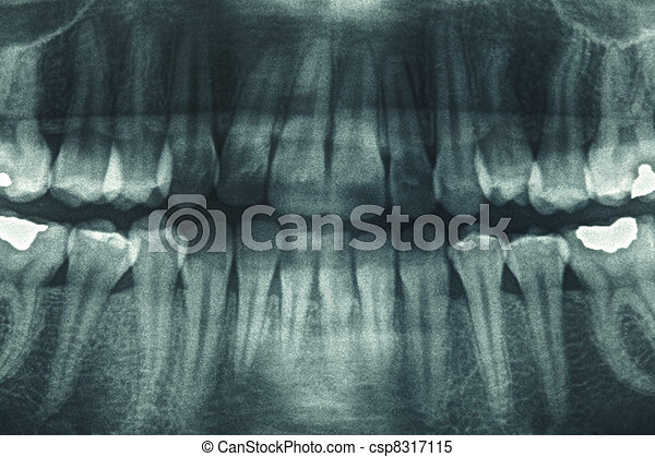 Panoramic dental xray - csp8317115