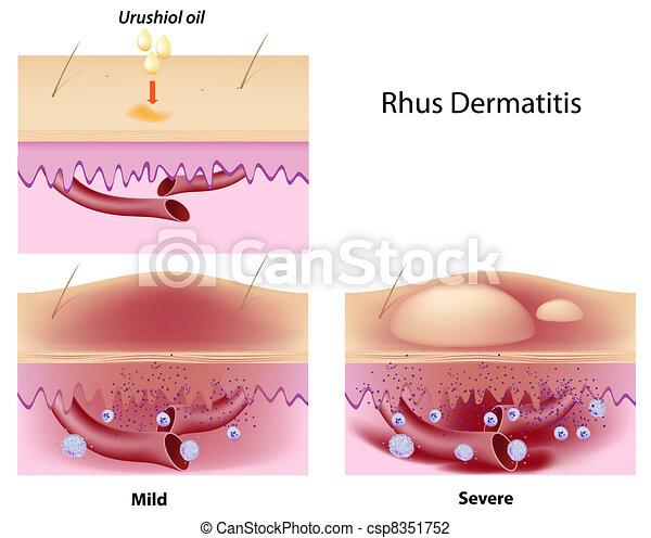 Rhus contact dermatitis, eps8 - csp8351752