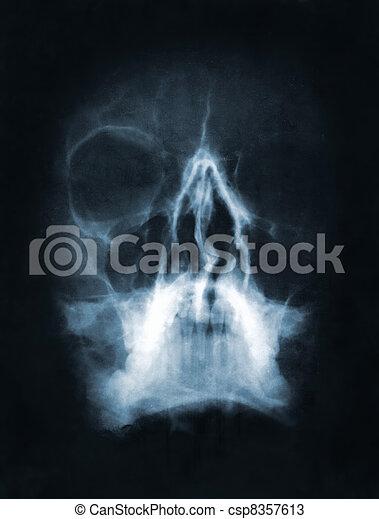 cranio, Raio X, imagem - csp8357613