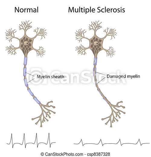 Multiple sclerosis, eps8 - csp8387328
