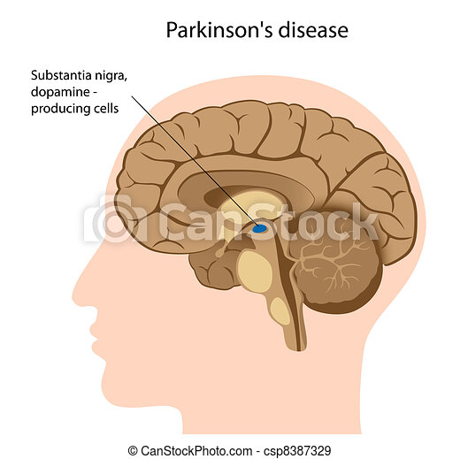 Parkinson's disease, eps8 - csp8387329