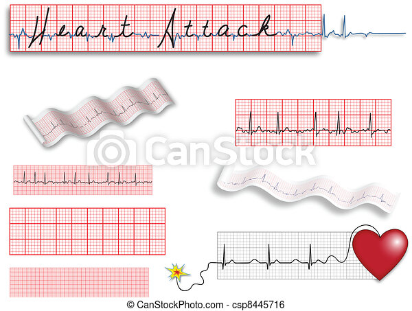 Full page EKG strips with Heart Att - csp8445716