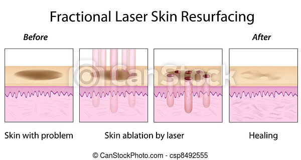 Fractional Skin Resurfacing, eps10 - csp8492555