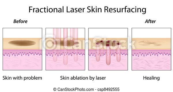 Fractional Skin Resurfacing, eps10 - csp8492555