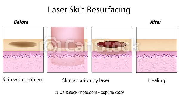 Laser Skin Resurfacing, eps10 - csp8492559