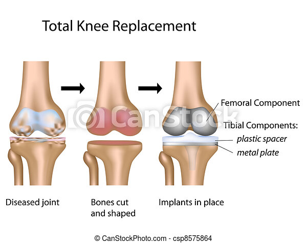 Total knee replacement, eps10 - csp8575864