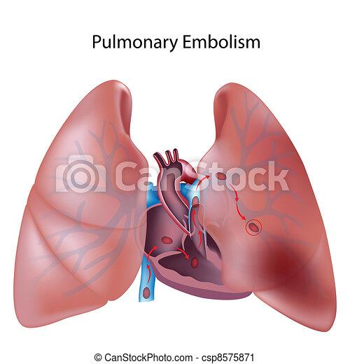 Pulmonary embolism, eps10 - csp8575871