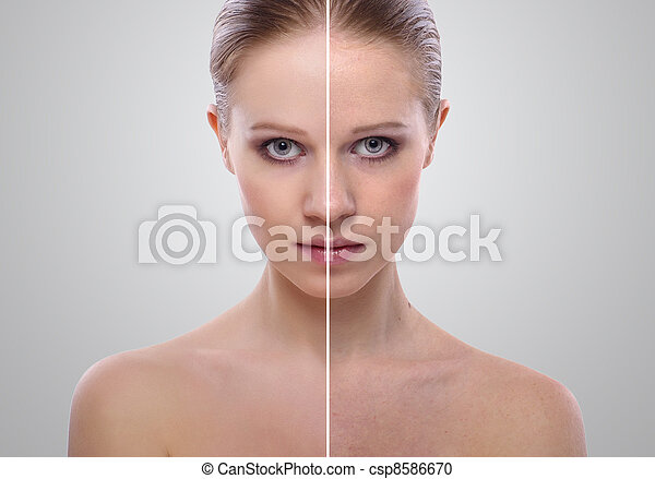effect of healing of skin, beauty young woman before and after the procedure on a gray background - csp8586670