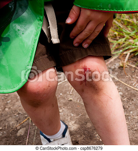 Skinned knee - csp8676279