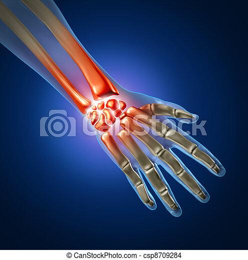 photo de douleur main humain main et poignet douleur caus csp8709284 recherchez. Black Bedroom Furniture Sets. Home Design Ideas