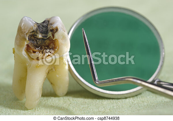 extracted tooth with dental caries - csp8744938