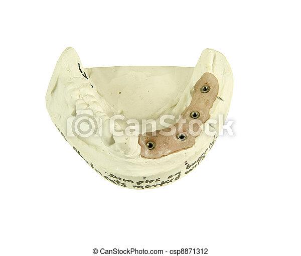 gypsum model for bridge implant - csp8871312