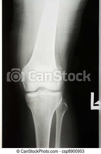 X-rayed the leg and knee - csp8900953
