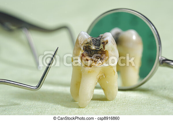 tooth with caries - csp8916860