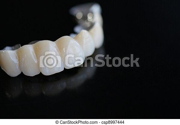 Bridge denture - csp8997444