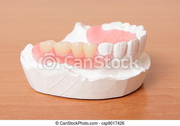 假牙, teeth), 丙烯酸, (false - csp9017426