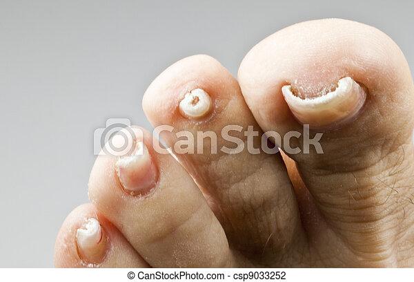 Wie zu erkennen ist gribok des Nagels