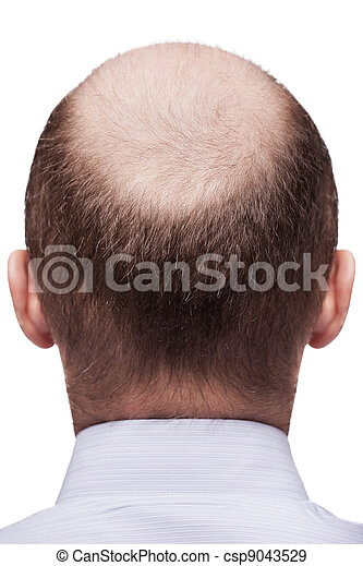Bald man head - csp9043529