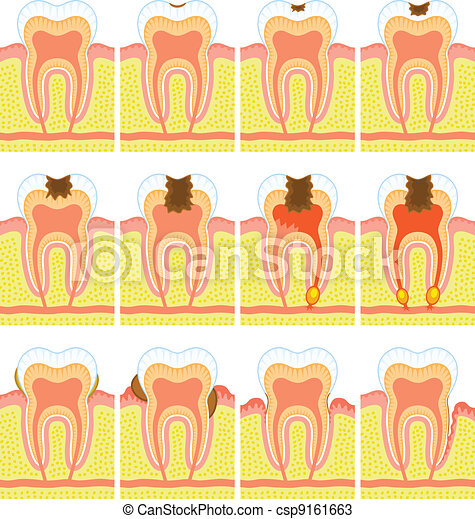 Internal structure of tooth  - csp9161663