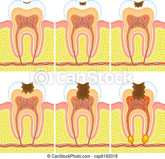 Internal structure of tooth - csp9193318