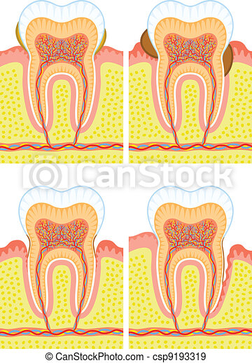 Internal structure of tooth - csp9193319