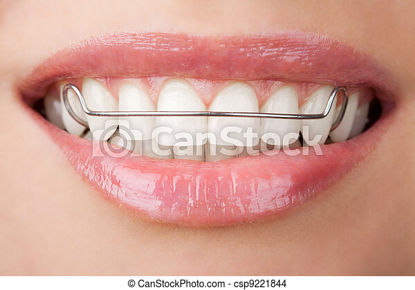 teeth with retainer - csp9221844