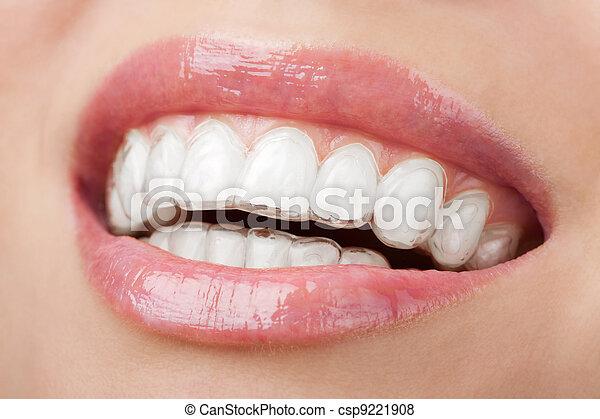 托盤, 變白, 牙齒 - csp9221908